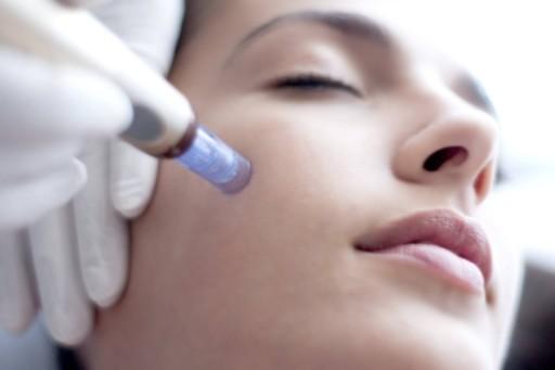 Le MICRO-NEEDLING : Un soin revitalisant complet pour votre peau