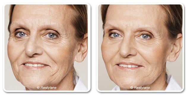 LES SKINBOOSTERS™ « un visage éclatant au naturel » - Dr Azoulay , médecine esthétique à Paris