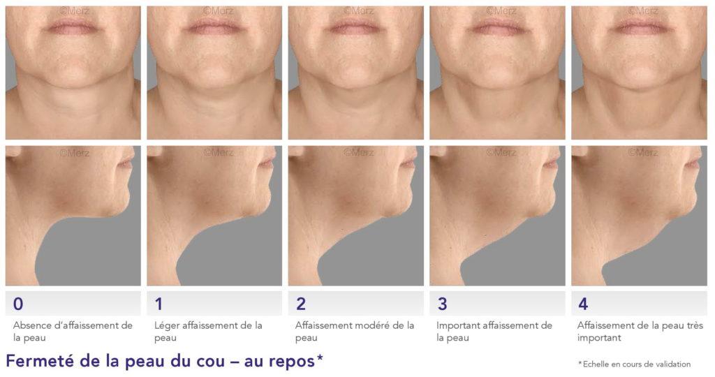 Le vieillissement du visage - Dr Azoulay, médecine esthétique à Boulogne