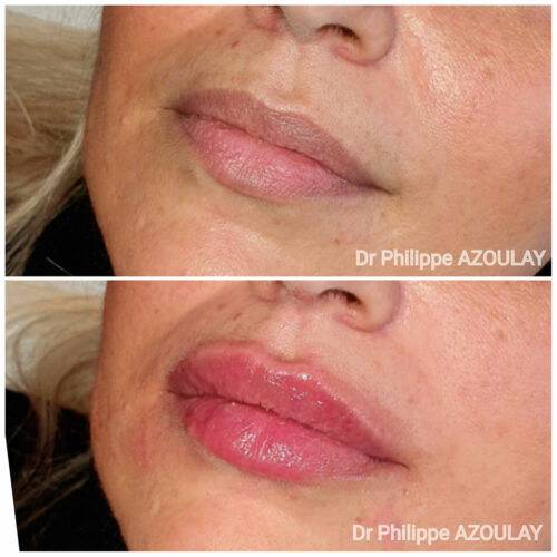 Injections lèvres Russian Lips Paris - Dr Azoulay