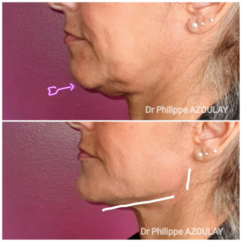 Jawline Contouring - Dr Philippe Azoulay